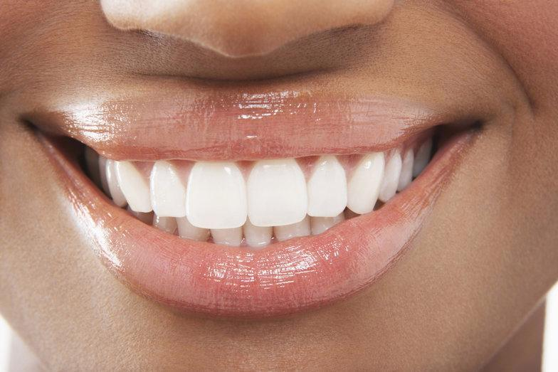 Maintaining Smile Whiteness | Huntsville AL Dentist