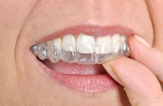 Close Up of Invisalign | Huntsville AL Dentist