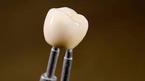 dental crowns huntsville al